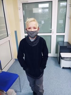 Zmagał się z opadającymi powiekami. Pomogli lekarze z Krakowa