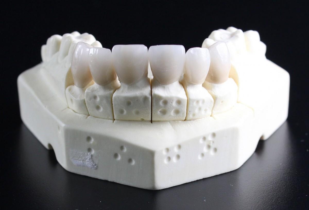 Mity na temat implantów zębowych